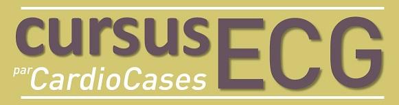 Cursus ECG par CardioCases